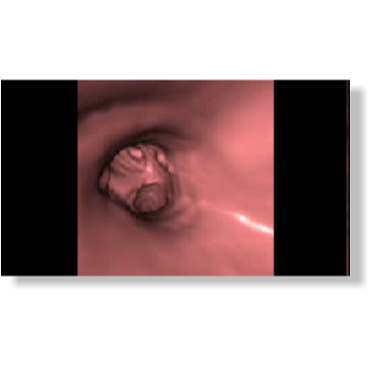 virtuelle Bronchoskopie