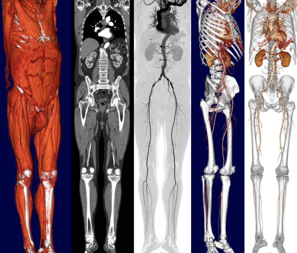 Ganzkörper-CT