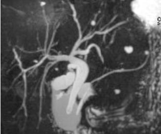 MRCP -  MR- Choledocho- Pankreaticographie Darstellung der Gallenwege