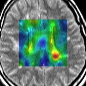 Neuro Imaging