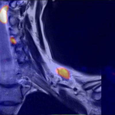 Onkologische Diagnostik - Hybrid Imaging